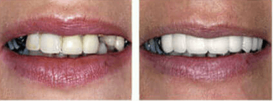 implant 6