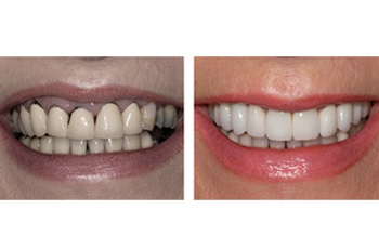 Fast-Fixed Smile Makeover - The Perfect Smile