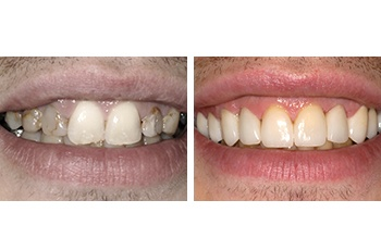 Tooth Decay Treatment Before and After by Perfect Smile 2017