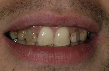 Complete care dentistry - The Perfect Smile