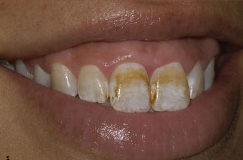 Treatment for Cosmetic Gums - The Perfect Smile