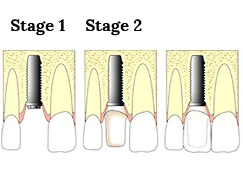 Dental Implant Treatment - The Perfect Smile