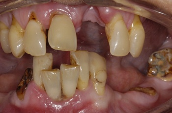 Before Cosmetic Dentistry by Perfect Smile