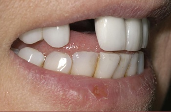 Tooth Implants from Perfect Smile