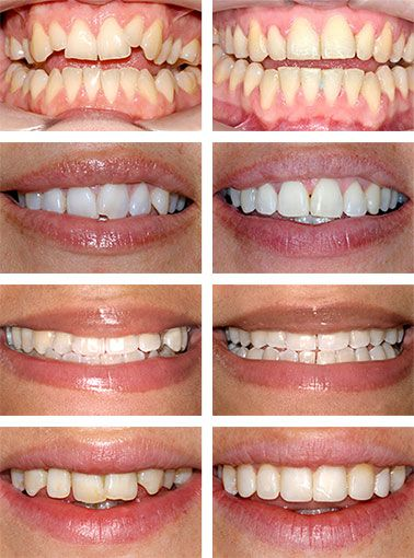 Perfect Smile Cosmetic Braces Images