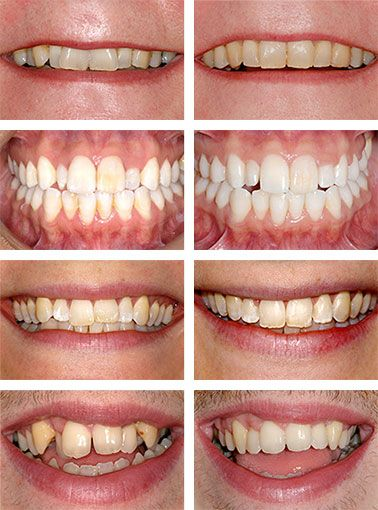 Dental Braces for Adults Before-After