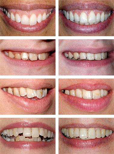 Before After Dental Braces