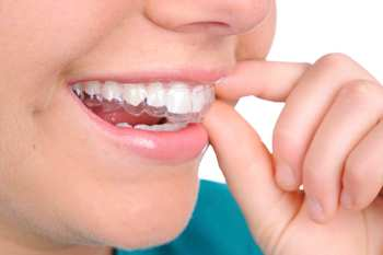 Cosmetic Braces - The Perfect Smile