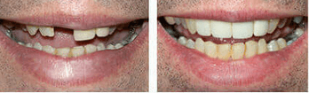 denture s