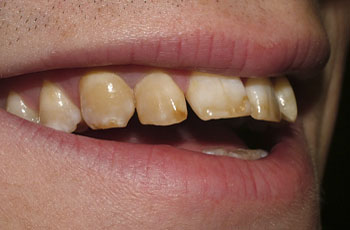 Treatment for fixing gaps in teeth - The Perfect Smile
