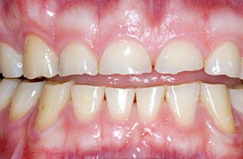 Treatment for worn-out teeth - The Perfect Smile