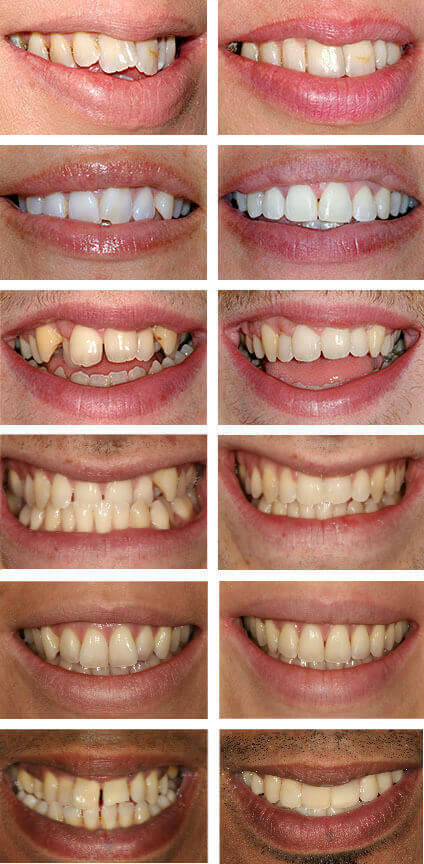 Teeth straightening treatment - The Perfect Smile