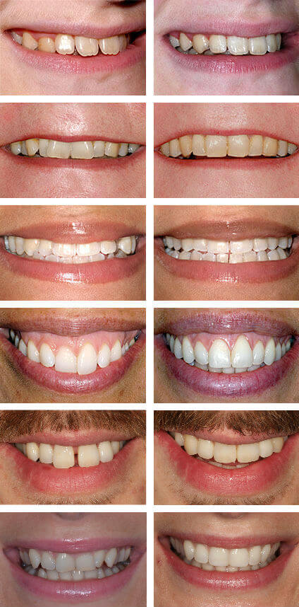 Smile Makeover - The Perfect Smile