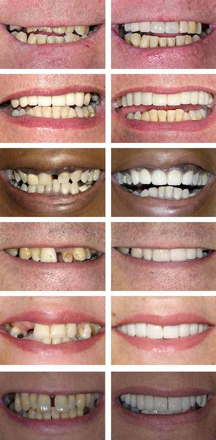 cosmetic dentistry herts