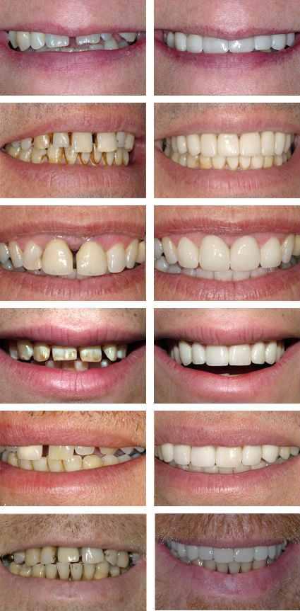 cosmetic dental work