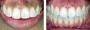 Gum-Whitening