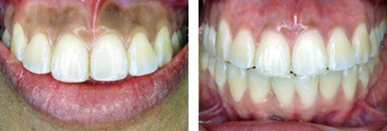Gum Whitening Treatment from Perfect Smile