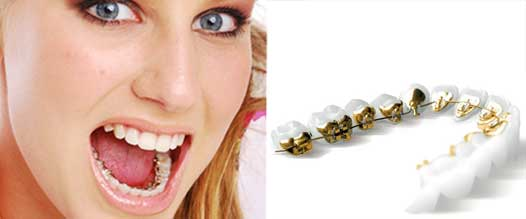 Invisible Orthodontic Treatment