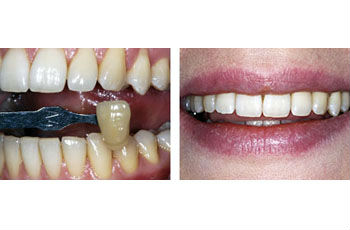Teeth Whitening Solutions- The Perfect Smile