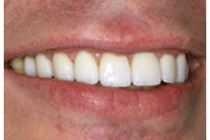 After Smile makeover - The Perfect Smile