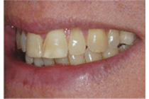 Before Smile makeover - The Perfect Smile