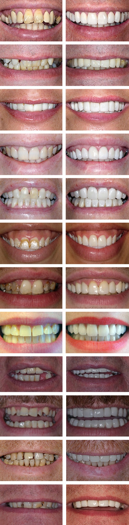 perfect smile dentistry