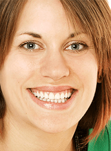 Gemma's treatment of short / worn teeth