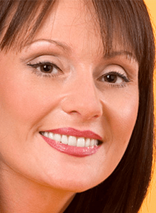 JACKIE S DISCOLOURED TEETH BEFORE & AFTER PHOTOS