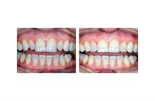 Lumineers teeth review uk dating