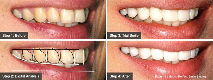 The choice of temporary veneers