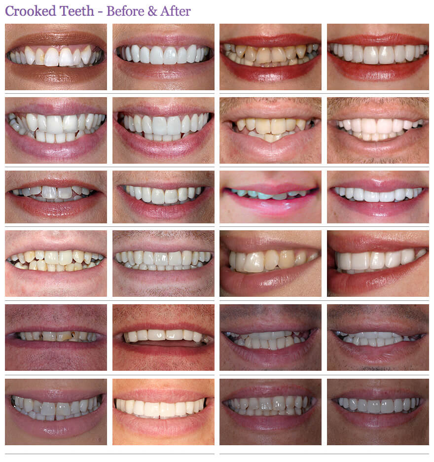 crooked teeth before and after preview 2