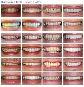 before and after dentistry photos in London