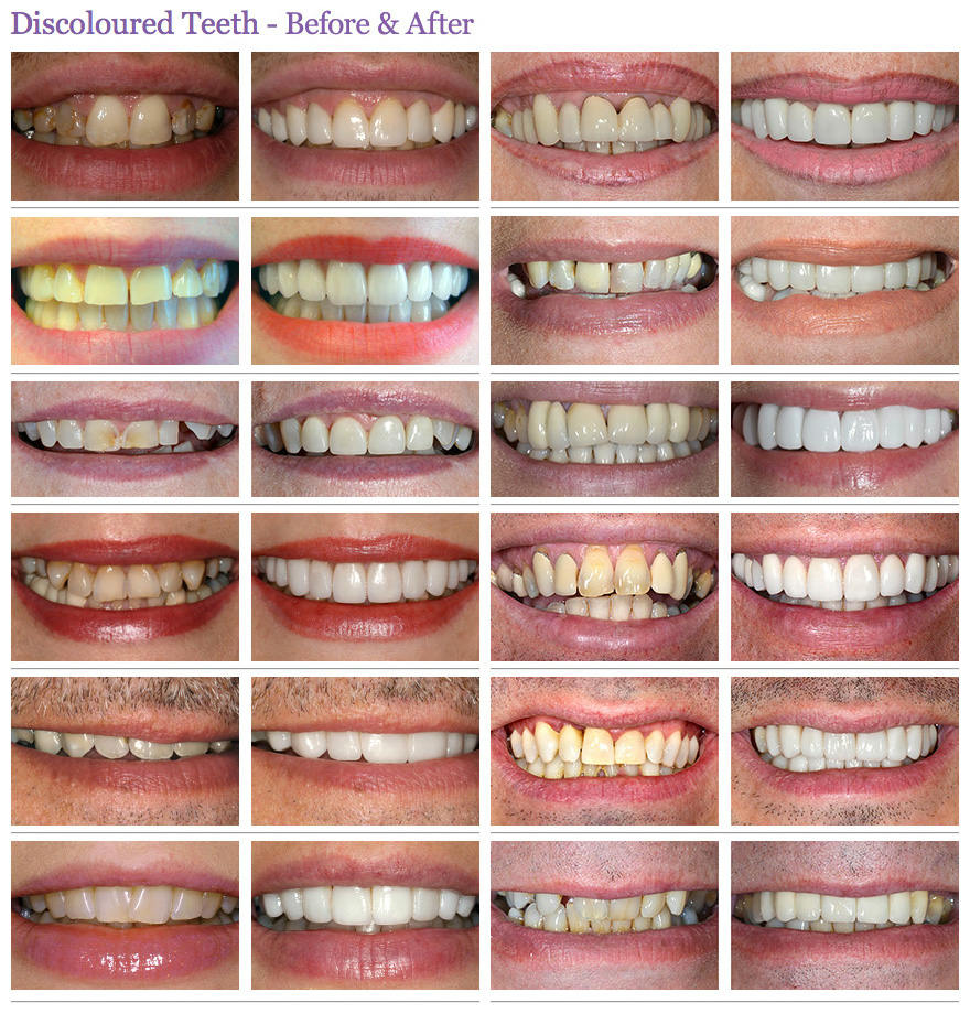 discoloured teeth before and after case 1