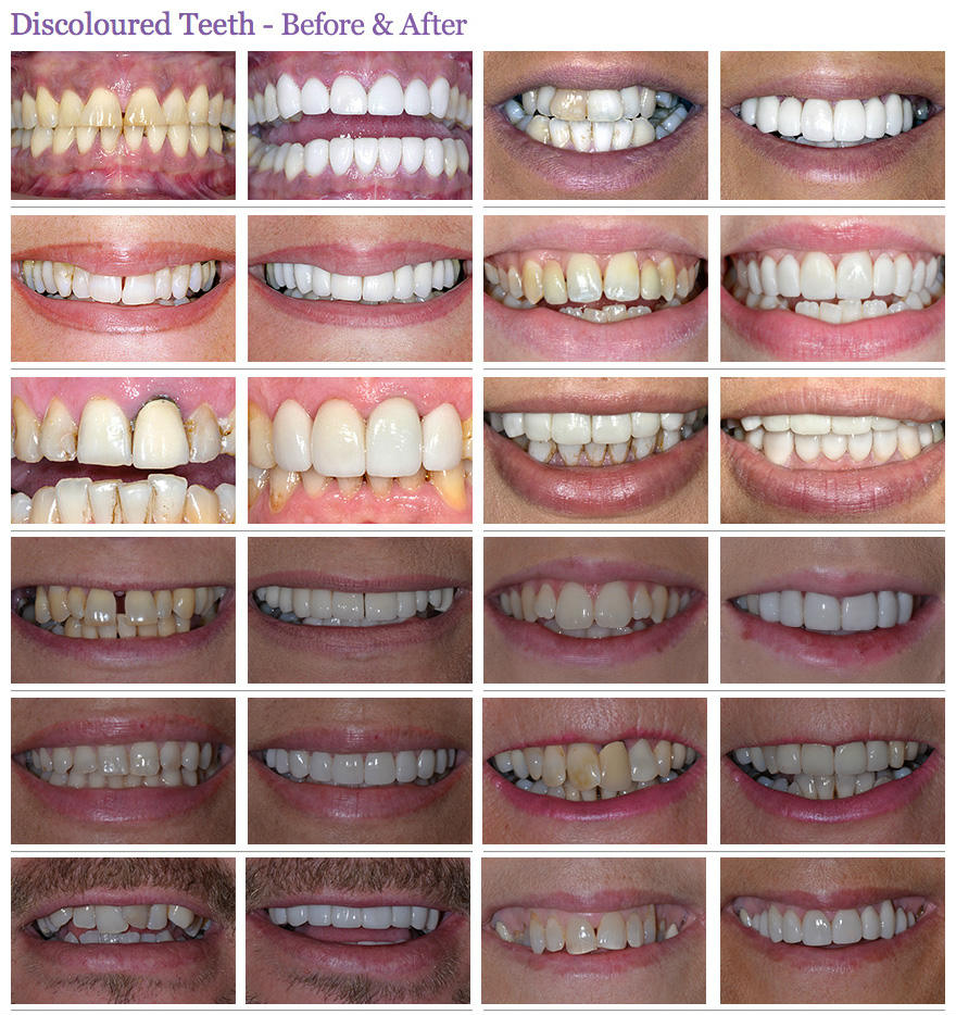 discoloured teeth before and after case 2