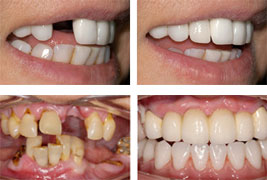 Single Dental Implant Before-After