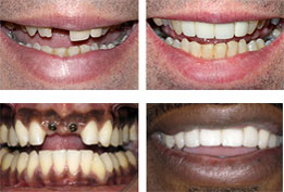 Before-After Missing Tooth Images