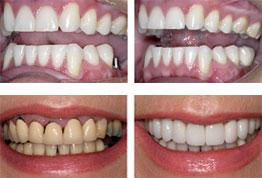 Single Dental Implant Images