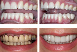 Single Dental Implant Images