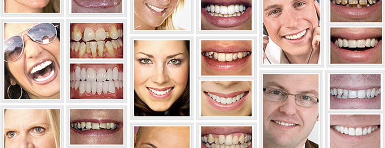 cosmetic dentistry West London