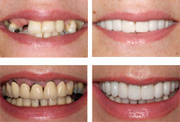 Before-After Multiple Missing Teeth