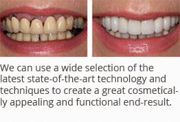 Multiple Missing Teeth Solutions