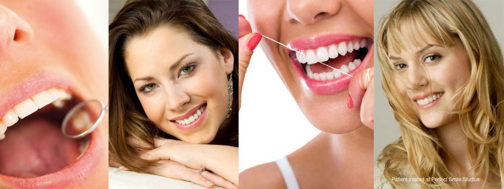 cosmetic gum veneers from the Perfect Smile