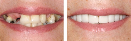 Treatment for Missing Teeth by Perfect Smile