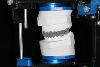 Teeth designing