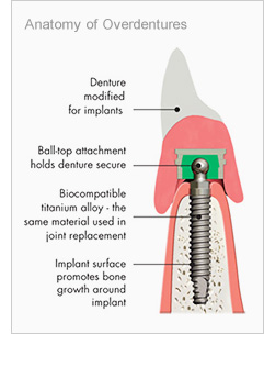 Dental Stabilisation with Implants