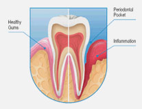Complete dental health - The Perfect Smile