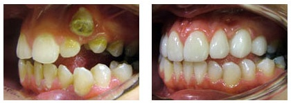 Rahul Doshi's Before and After Dental Treatment Case 3