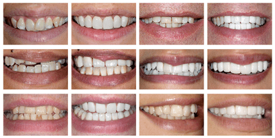 crooked teeth before and after preview 1