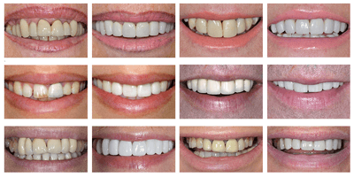 crown teeth before and after preview