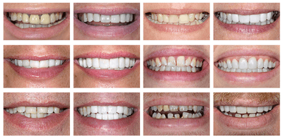 discoloured teeth before and after preview